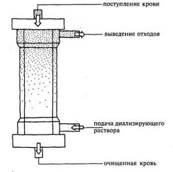 диализатор