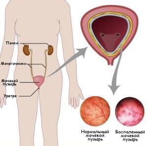 Мочевой пузырь: воспаление и норма
