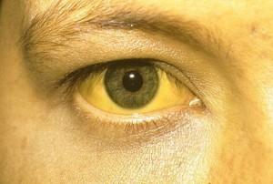 Причины мочи коричневого цвета