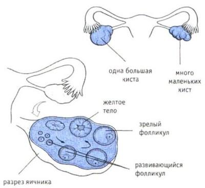 кисты  яичника