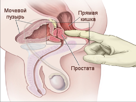 Компременты предстательной железы