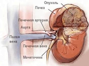ангиомиолипома левой почки