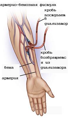 Схема гемодиализа