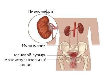признаки пиелонефрита