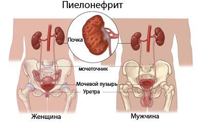 пиелонефрит симптомы и лечение