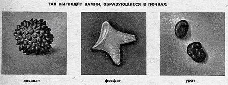 оксалатные камни в почках