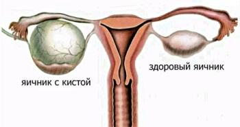 яичники: здоровый и больной